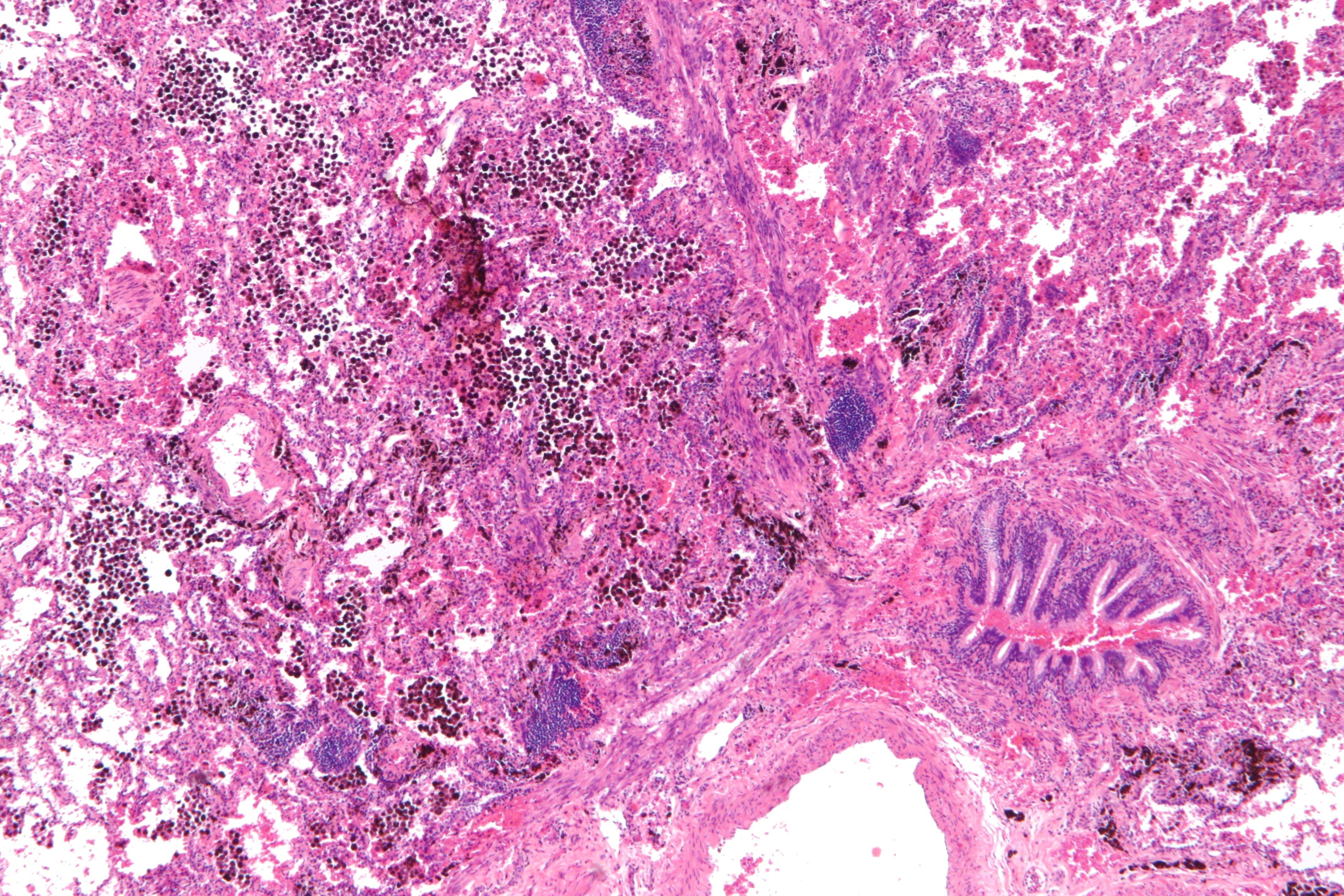 Pulmonary hemorrhage
