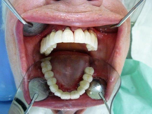 ricostruzione implantoprotesica immediata e differita