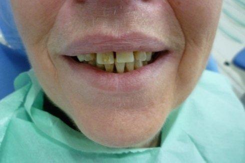 Alterazione estetica dovuta a denti storti e distanziati.