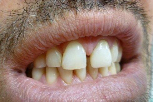 I denti dopo l'inserimento di una protesi al posto dell'incisivo centrale superiore.