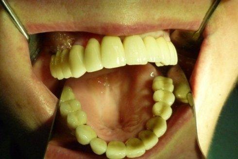 Realizzazione di protesi dentali fisse per l