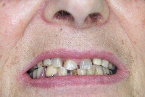 Dilatazione dei tessuti dentali con perdita estetica e funzionale.