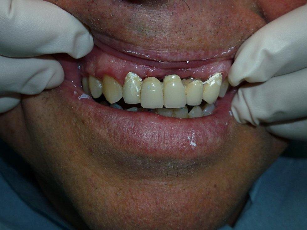 implantologia estetica