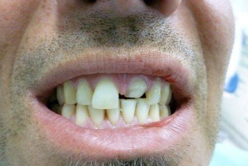 Malformazione dente incisivo dell'arcata superiore