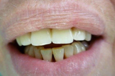Denti dell'arcata superiore dopo l'intervento ortodontico.