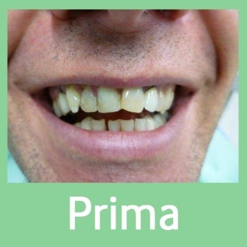 intervento correzione denti