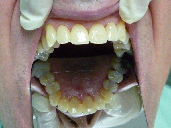 Protesi dentaria fissa