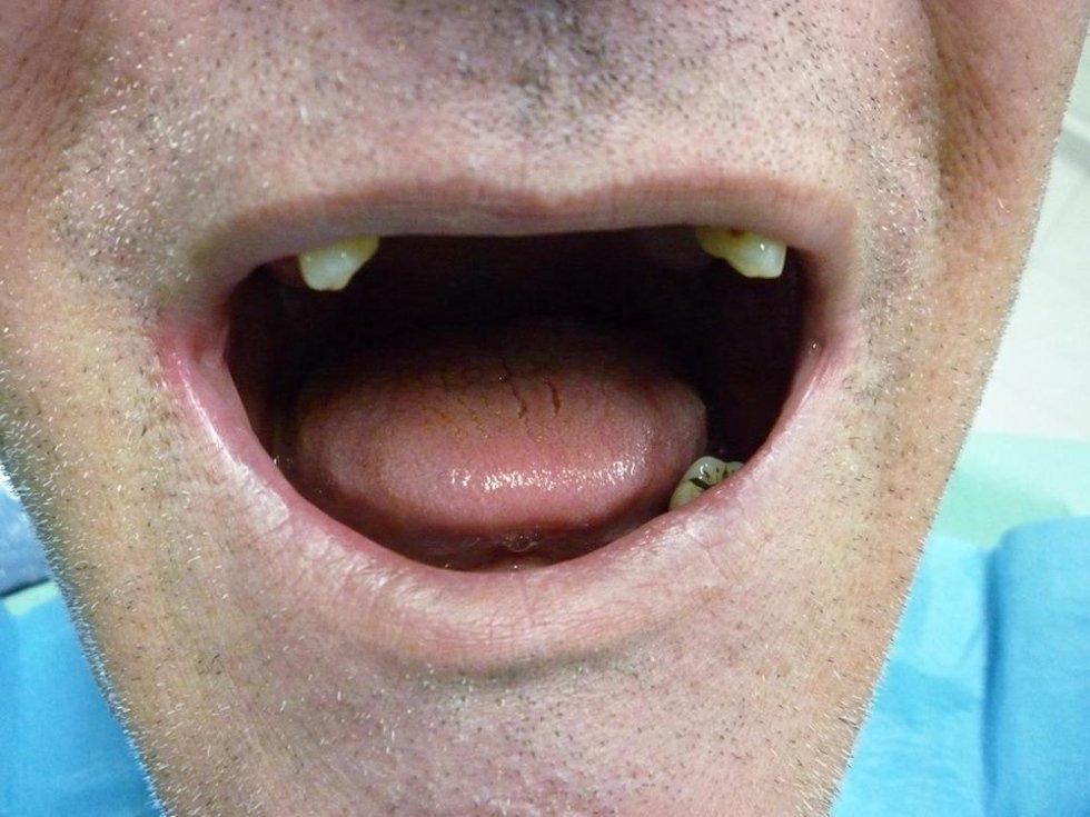implantoprotesi