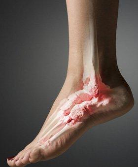 Foot problems - Huddersfield, West Yorkshire - Jayne Oldmeadow - Ankle