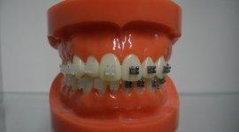 estetica dentale, odontoiatria estetica, odontoiatria