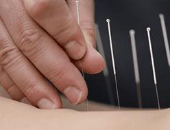 Agopuntura Curti