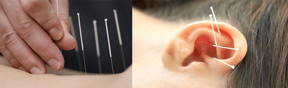 agopuntura caserta