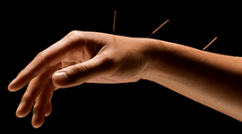 agopuntura trattamento disturbi cronici