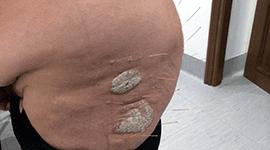 agopuntura trattamento psoriasi