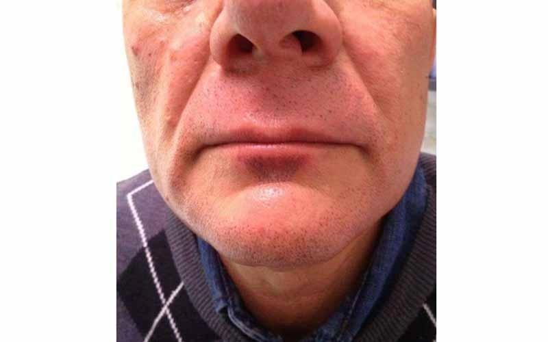 Puntinatura effetto barba e baffi