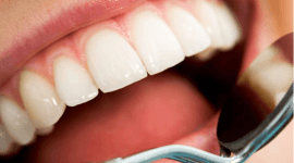 implantologia, ortodonzia infantile, ortodonzia invisibile, parodontologia, edodonzia, Scandicci (FI), Firenze