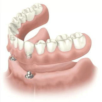 protesi dentarie mobili, dentiera, protesi mobile scheletrata, Scandicci (FI), Firenze