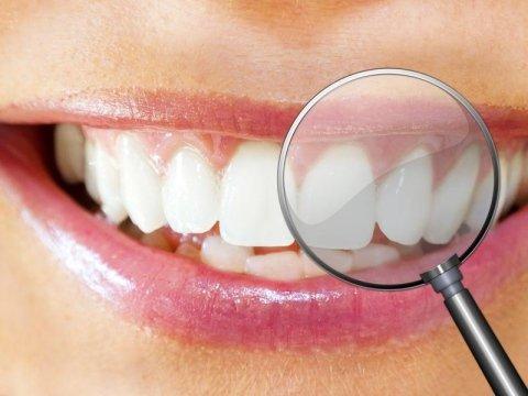 Prestazioni dentistiche Genova