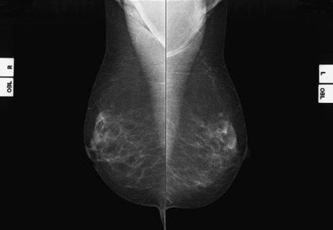 mammografia a bassa dosaggio