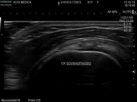 ecografia muscolo tendinea roma