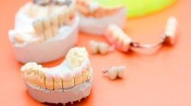 estetica dentale, igiene orale, laboratori odontotecnici