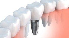 implantologia_osteointegrata