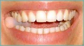 occlusioni dentali
