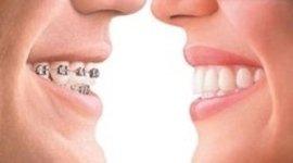 ortodonzia infantile, odontoiatria infantile, studio odontoiatrico infantile