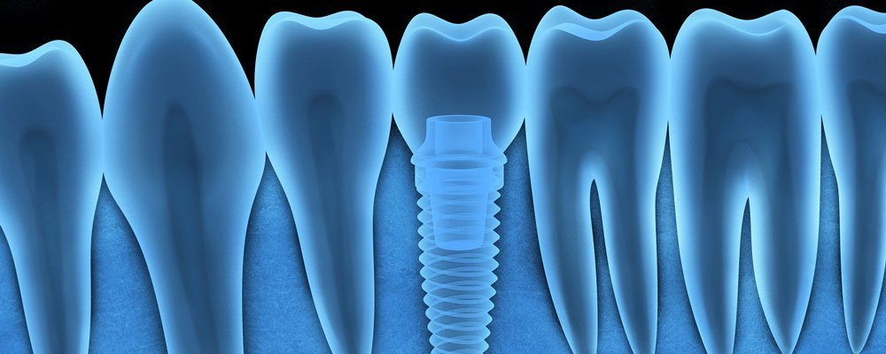 Dental Implants in Laurel MD