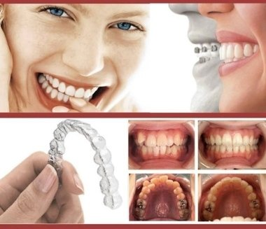 trattamenti ortodontici,odontoiatria estetica