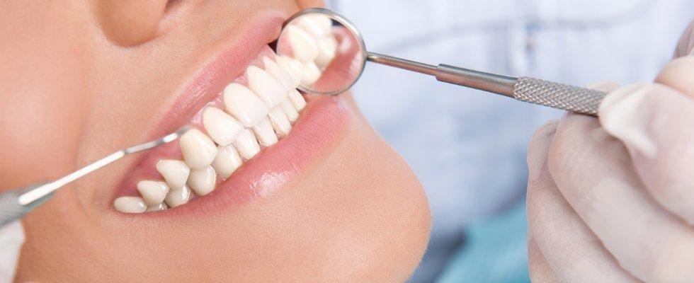 Servizio di pulizia e controllo denti da parte della dott.ssa Carosi Doriana