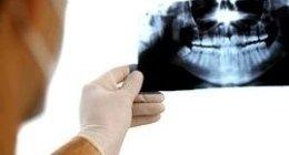controllo e studio panoramica dentale dei pazienti
