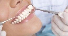 servizio di sbiancamento dentale in provincia di Ascoli Piceno