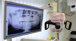 estrazione molare, dente del giudizio, otturazioni