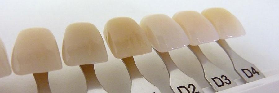 Igiene denti
