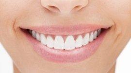 sorriso perfetto, denti sani, gengive sane