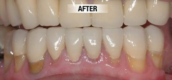 worn down teeth after 1