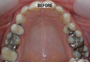 worn down teeth before 3