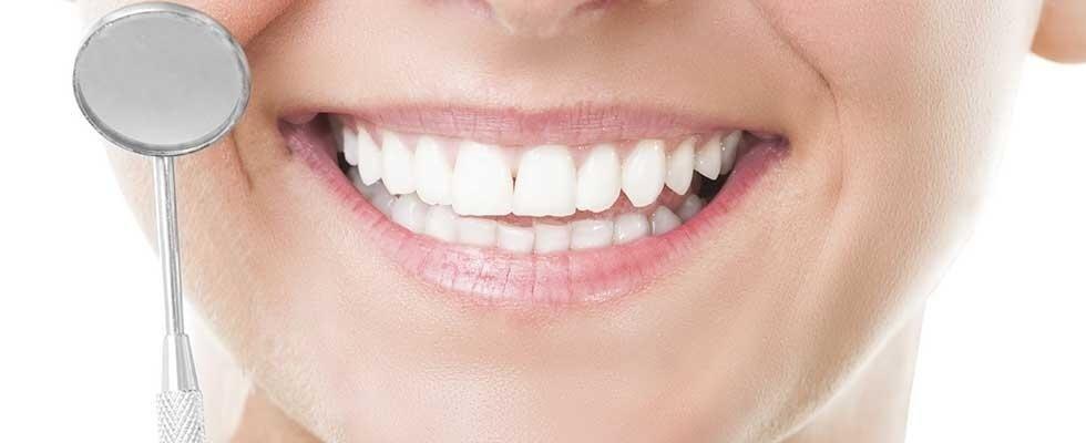 cura del sorriso