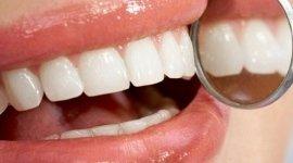 Visita denistica