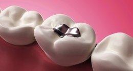 otturazione dentale, chirurgia dentale, riempimento cavità orale