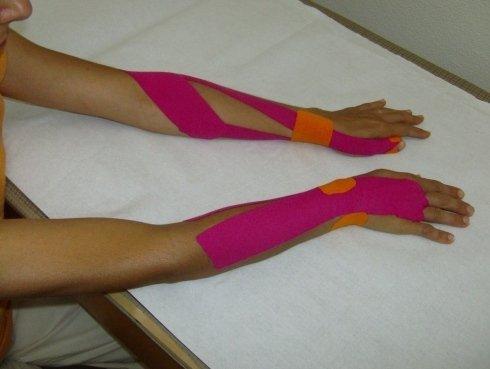 taping muscolare mani e braccia