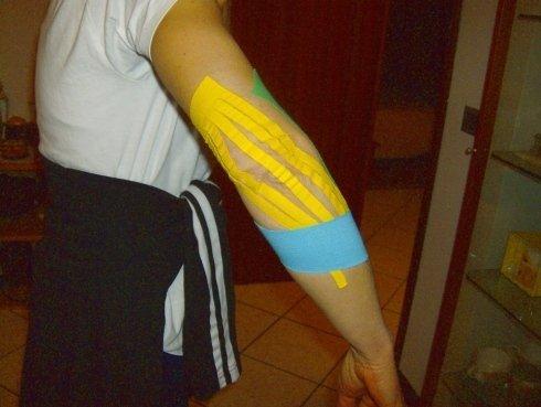 taping muscolare gomito