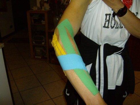 taping muscolare braccio