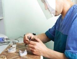costruzione protesi fisse