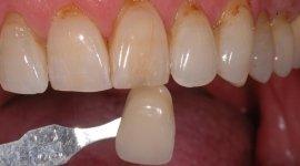 odontotecnico, dente finto
