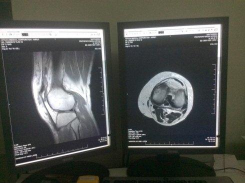 lettura radiografia medica