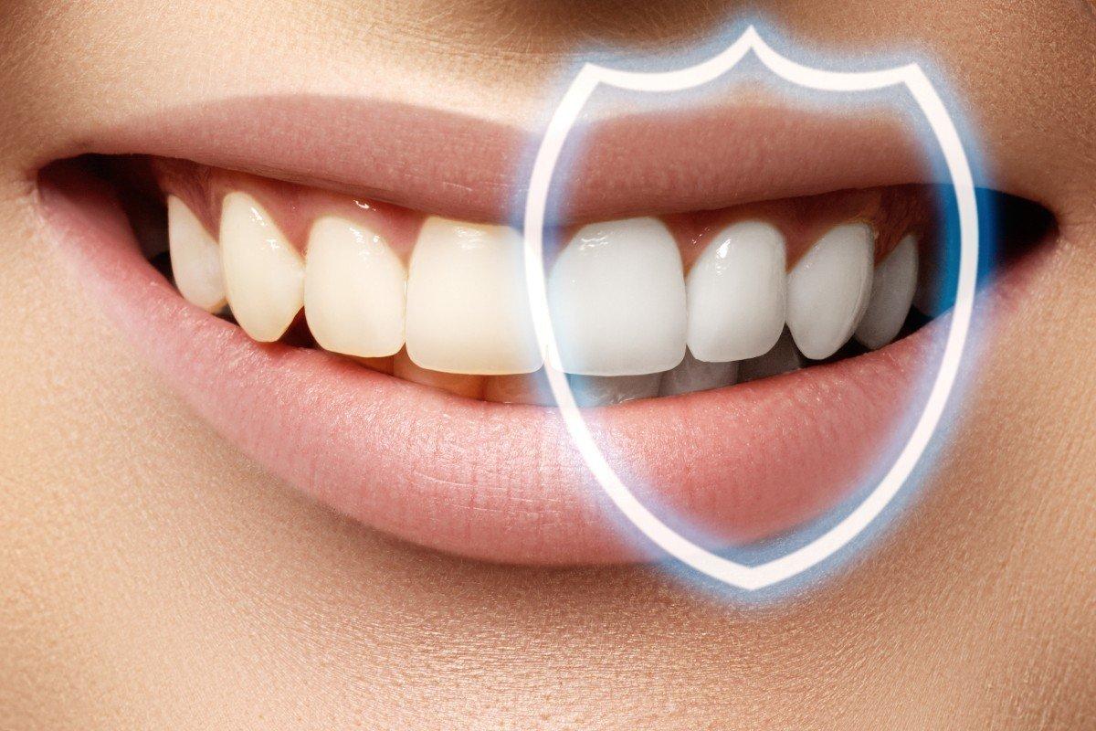 Denti dopo la pulizia