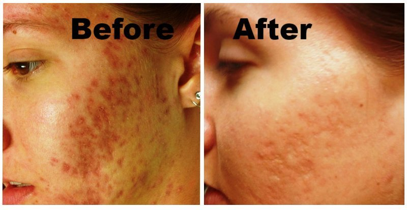 Acne Scars before and after microneedling treatment Charlotte