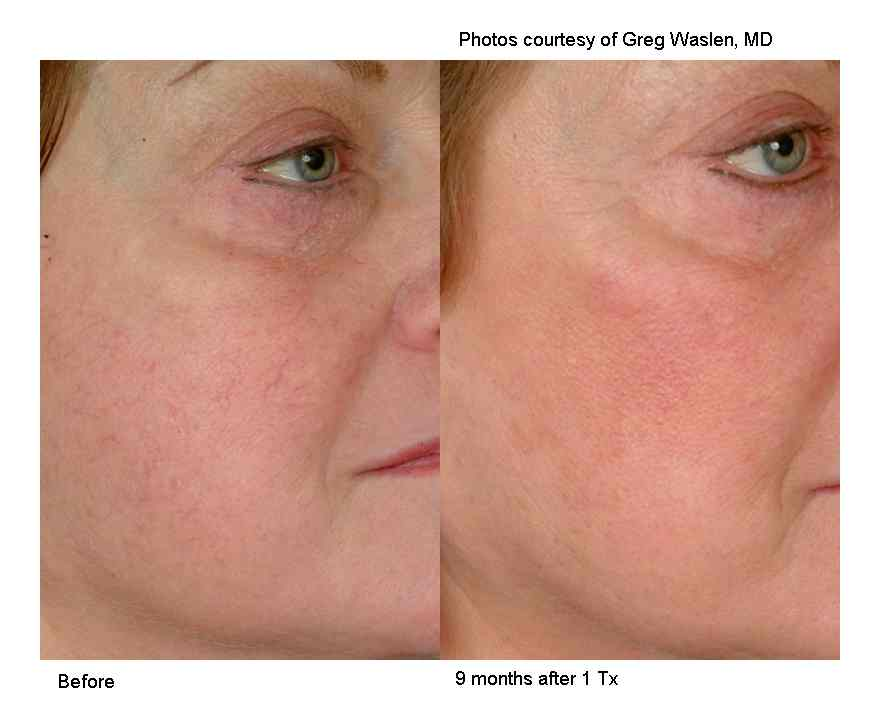 rosacea treatments and Spider vein treatments in Charlotte